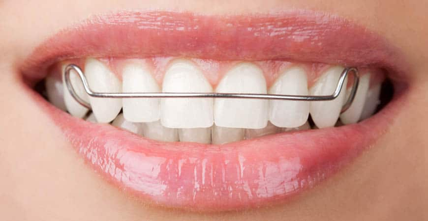 Get the Smile You've Always Wanted from an Orthodontist in Vancouver