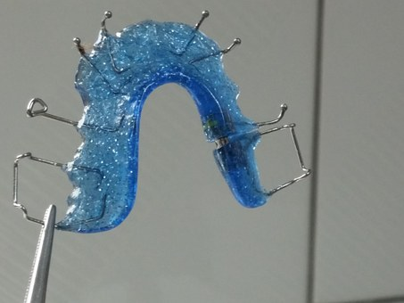 How Important is Wearing Your Retainer?